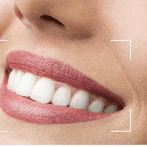 سرمایه گذاری دندانپزشکی – مطمئن و آینده ای روش